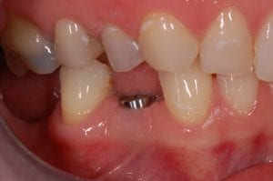 Dental Implant to replace lower premolar