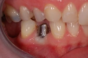 Abutment over the Implant