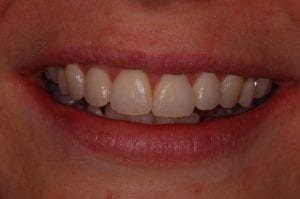 Straight front teeth after Inman Aligner treatment