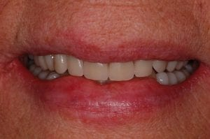 After Implant retained dentures