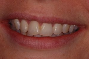 Overlapping front teeth before Inman Aligner