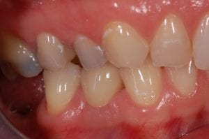 Final crown placement over the implant and abutment