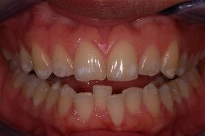 front view before 6 month braces
