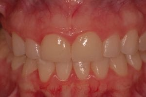 After placement of high quality cosmetic crowns