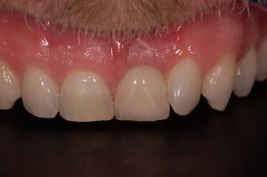 After Crown placement over Implant