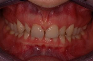 Before White fillings on the laterals