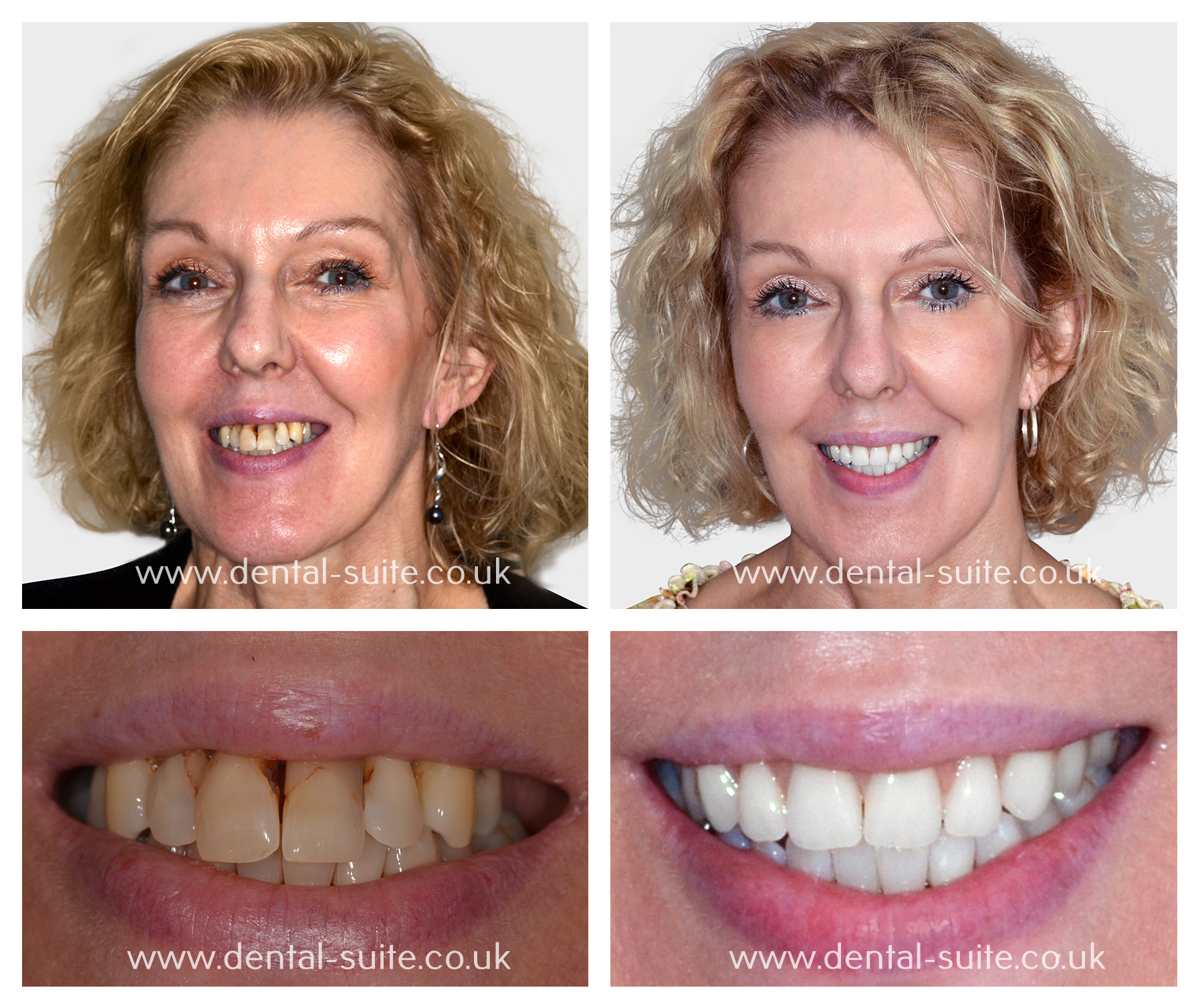 Leicester & Loughborough Complete Smile Makeover Treatment